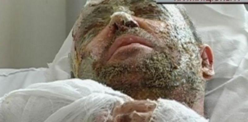 Пометили на всю жизнь:   Следователь столичной полиции попал в больницу с ожогами лица после нападения неизвестного
